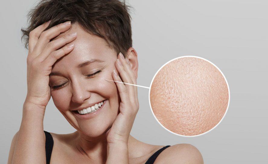 Welche natürlichen Mittel sind am besten bei fettiger Haut geeignet?